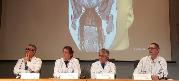 Cirugía láser para la epilepsia