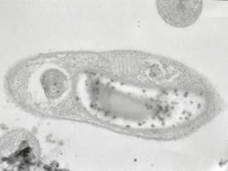 Bacteria Desulforudis audaxviator.