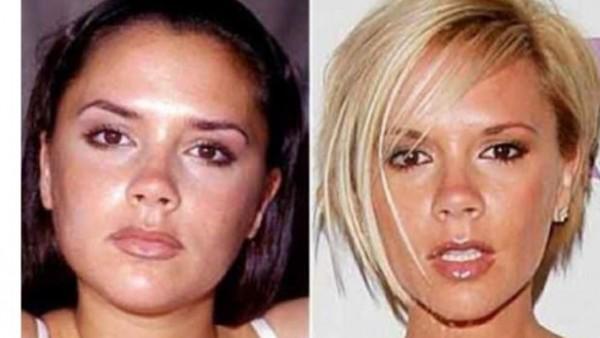 Operacion de mandibula antes y despues de adelgazar