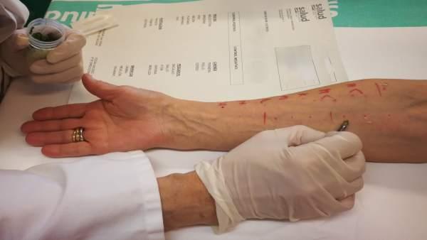 Zaragoza.- El Hospital Clínico y el programa PROA diseñan un protocolo para pacientes alérgicos a la penicilina