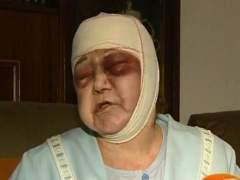 mujer agredida