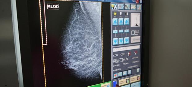 Toledo alberga una cita científica de referencia en cáncer de mama para debatir sobre sus últimos avances