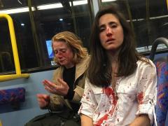 Agresión a una pareja de lesbianas en Londres