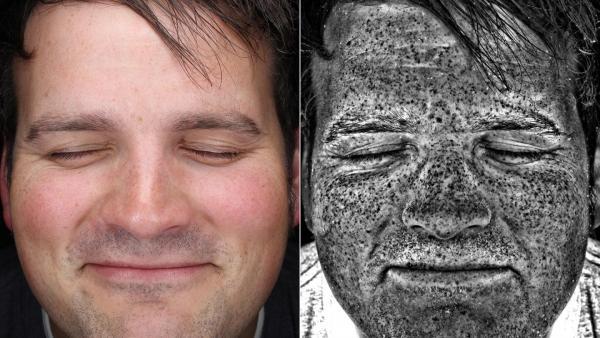 Daños del sol en la piel