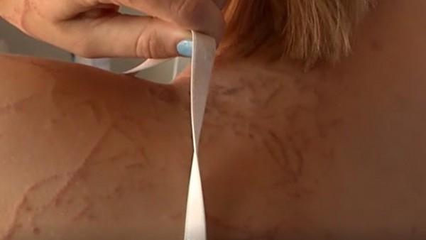 Peligrosa picadura de una carabela portuguesa a una joven en Murcia