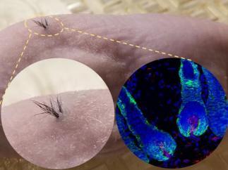 Cabello a partir de células madre