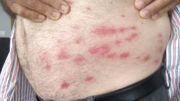 Picaduras de mosca en el cuerpo de un agricultor