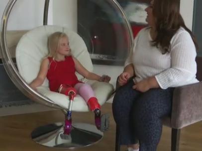 La historia de superación de Daisy: desfila con sus dos piernas amputadas