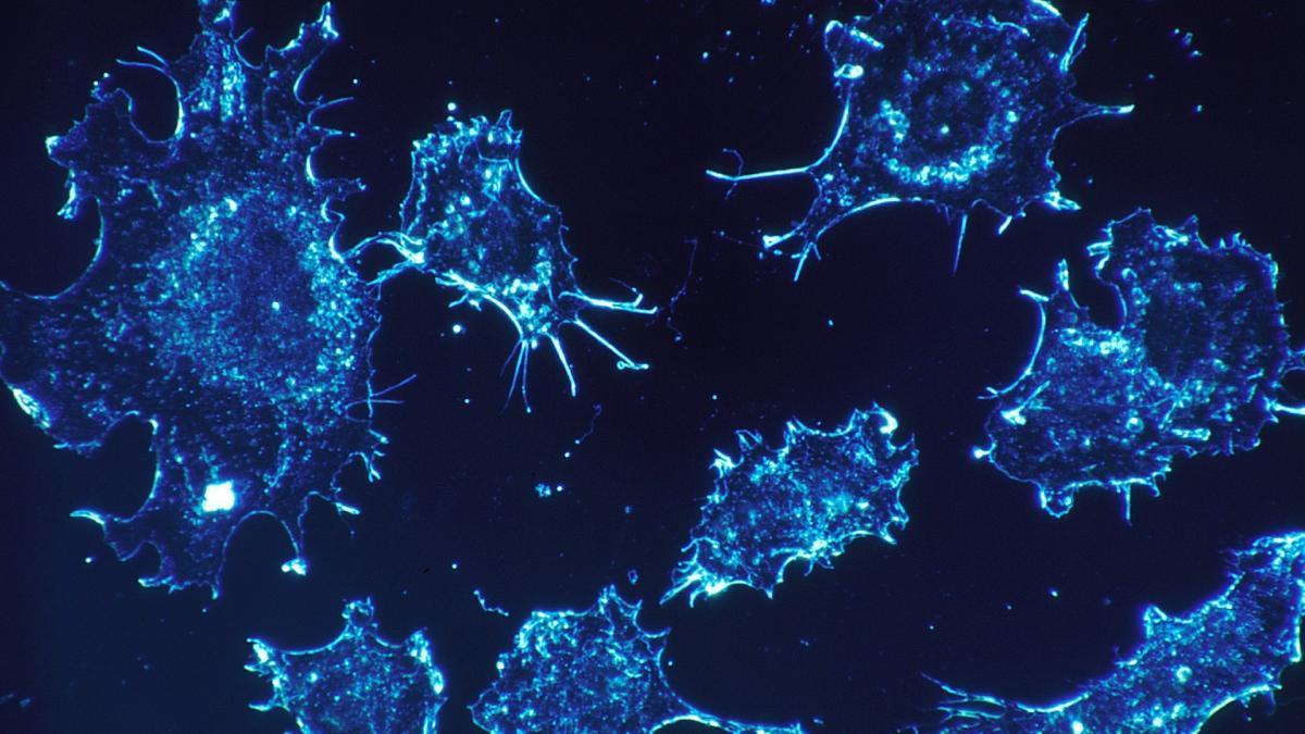 Una nueva vacuna ayuda a acabar con células cancerígenas en una paciente